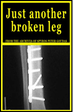 Book just another broken leg by Spyros Peter Goudas However there was one setback when a serious accident almost put Goudas out of business in 1979.   But he has since rebuilt through hard work: and with lots of that characteristic determination which has now put him secuntrely out in fro.